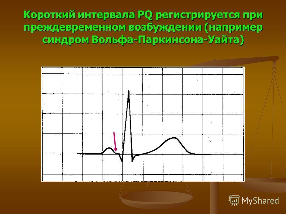 Короткий интервала PQ регистрируется при преждевременном возбуждении (например синдром Вольфа-Паркинсона-Уайта)