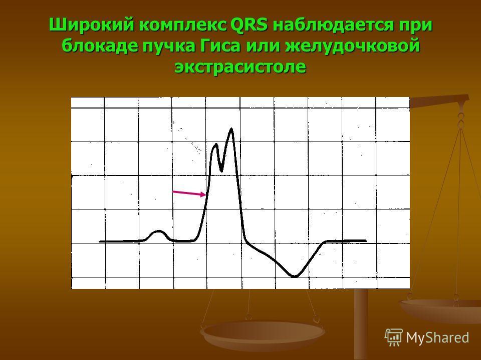 Широкий комплекс QRS наблюдается при блокаде пучка Гиса или желудочковой экстрасистоле