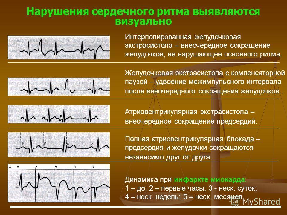 Нарушения сердечного ритма выявляются визуально Желудочковая экстрасистола с компенсаторной паузой – удвоение межимпульсного интервала после внеочередного сокращения желудочков.. Атриовентрикулярная экстрасистола – внеочередное сокращение предсердий.