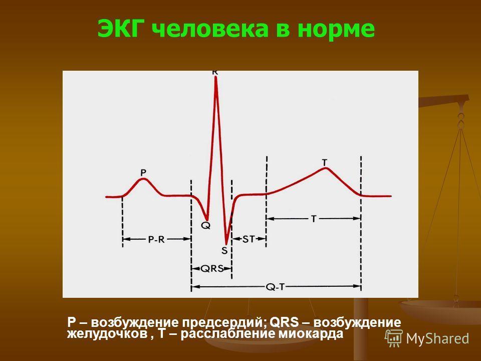 ЭКГ человека в норме Р – возбуждение предсердий; QRS – возбуждение желудочков, Т – расслабление миокарда
