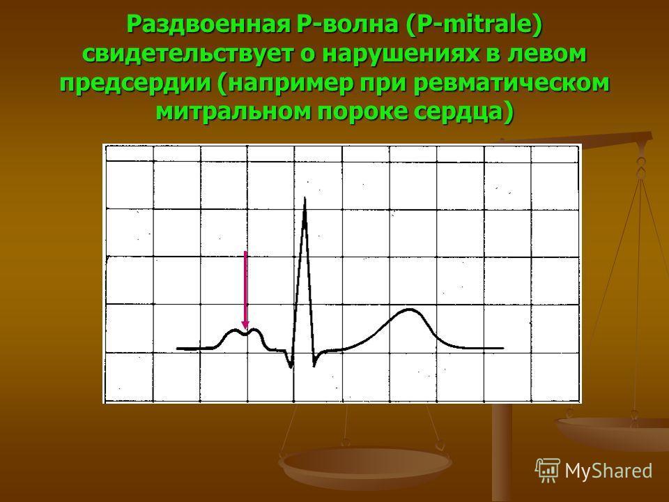 Раздвоенная P-волна (P-mitrale) свидетельствует о нарушениях в левом предсердии (например при ревматическом митральном пороке сердца)