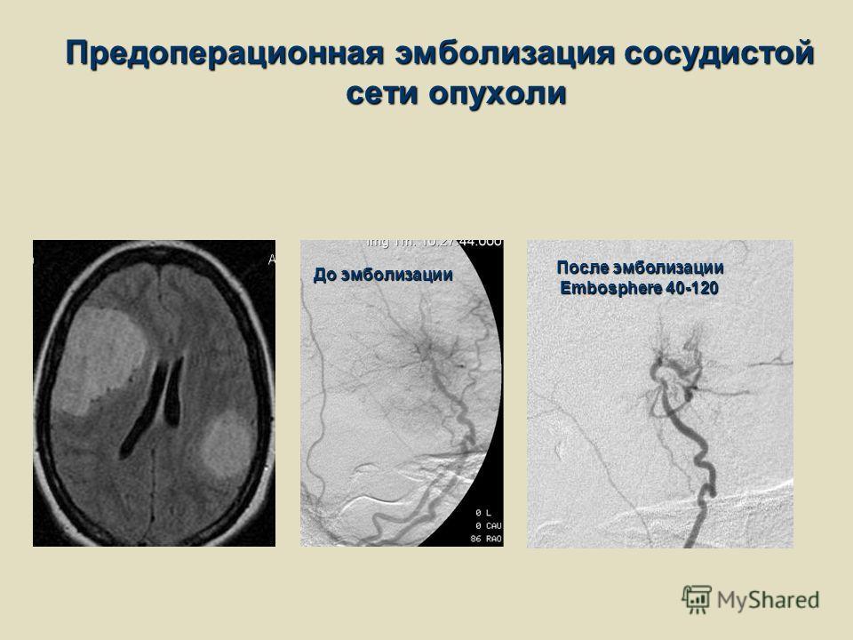 Предоперационная эмболизация сосудистой сети опухоли До эмболизации После эмболизации Embosphere 40-120