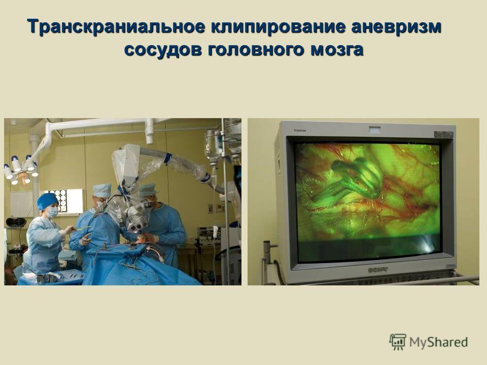 Транскраниальное клипирование аневризм сосудов головного мозга