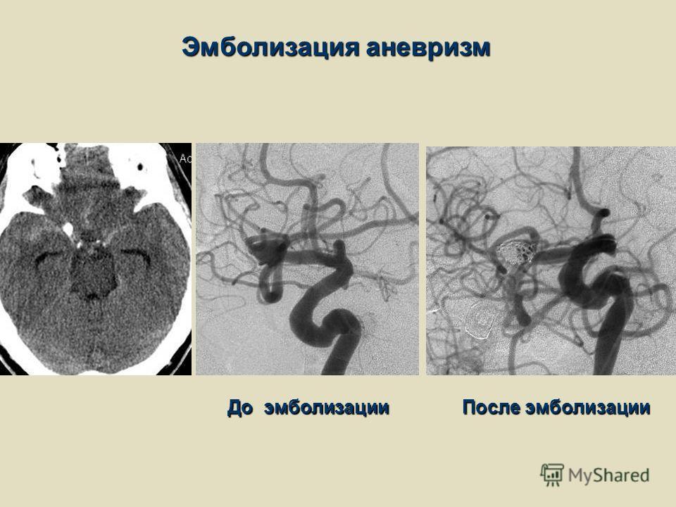 Эмболизация аневризм До эмболизации После эмболизации