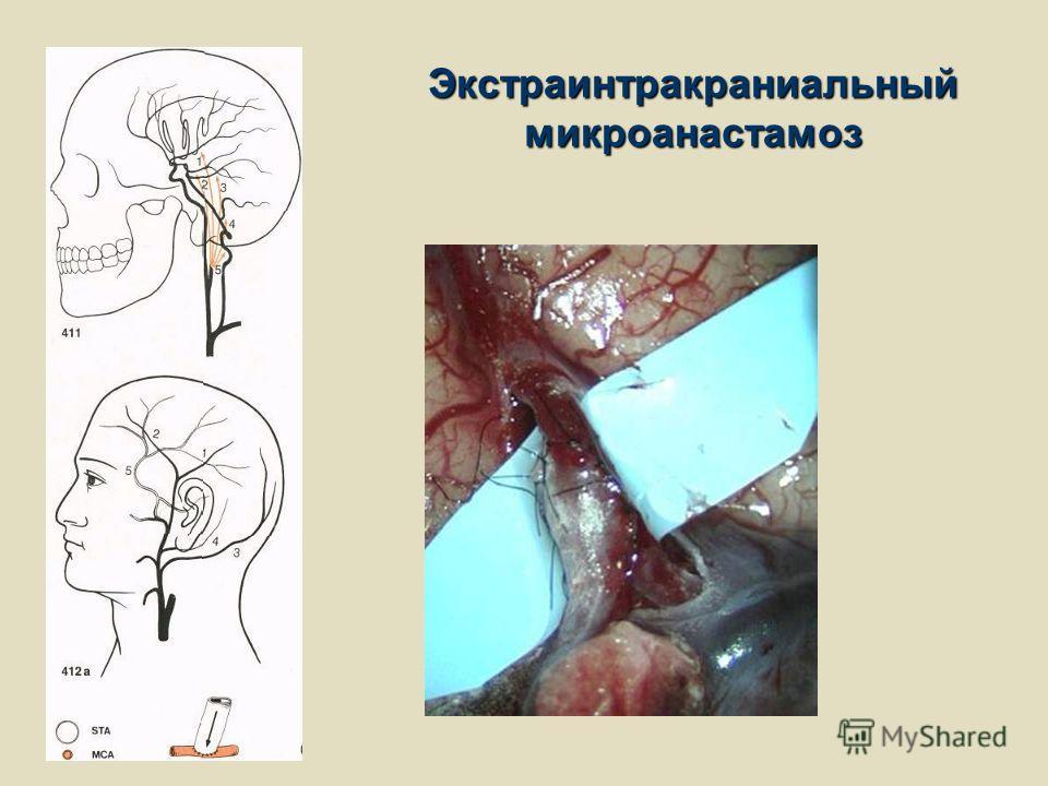 Экстраинтракраниальный микроанастамоз