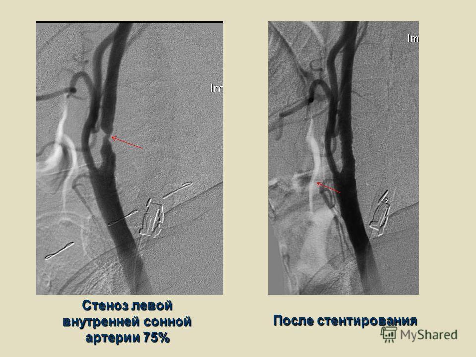 Стеноз левой внутренней сонной артерии 75% После стентирования