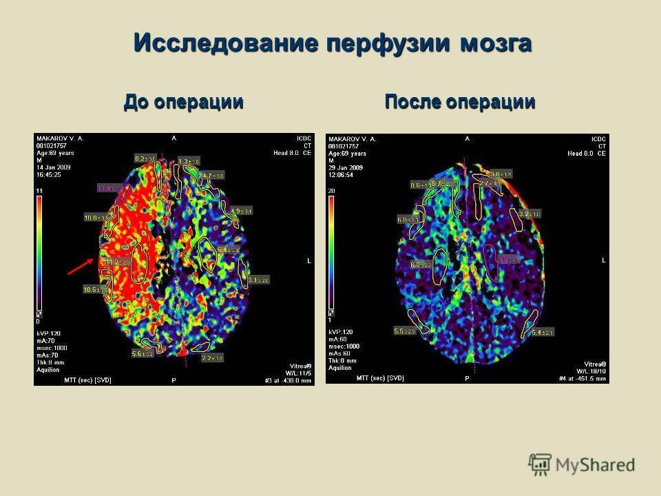 Исследование перфузии мозга После операции До операции