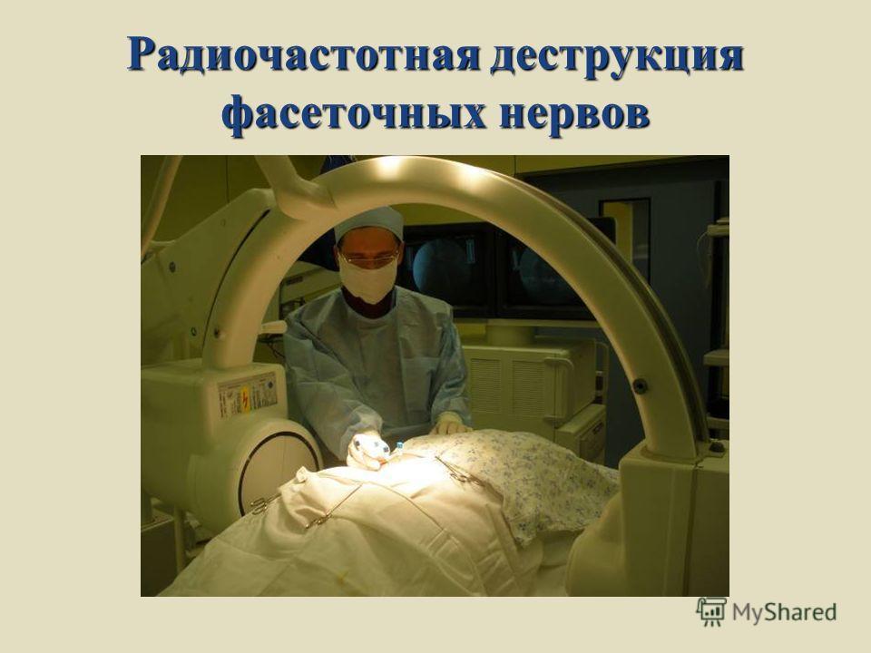 Радиочастотная деструкция фасеточных нервов