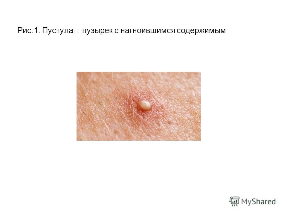Болит левое яичко и в паху слева у