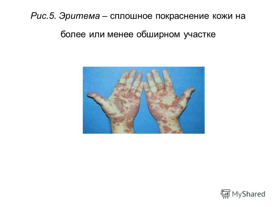 Рис.5. Эритема – сплошное покраснение кожи на более или менее обширном участке