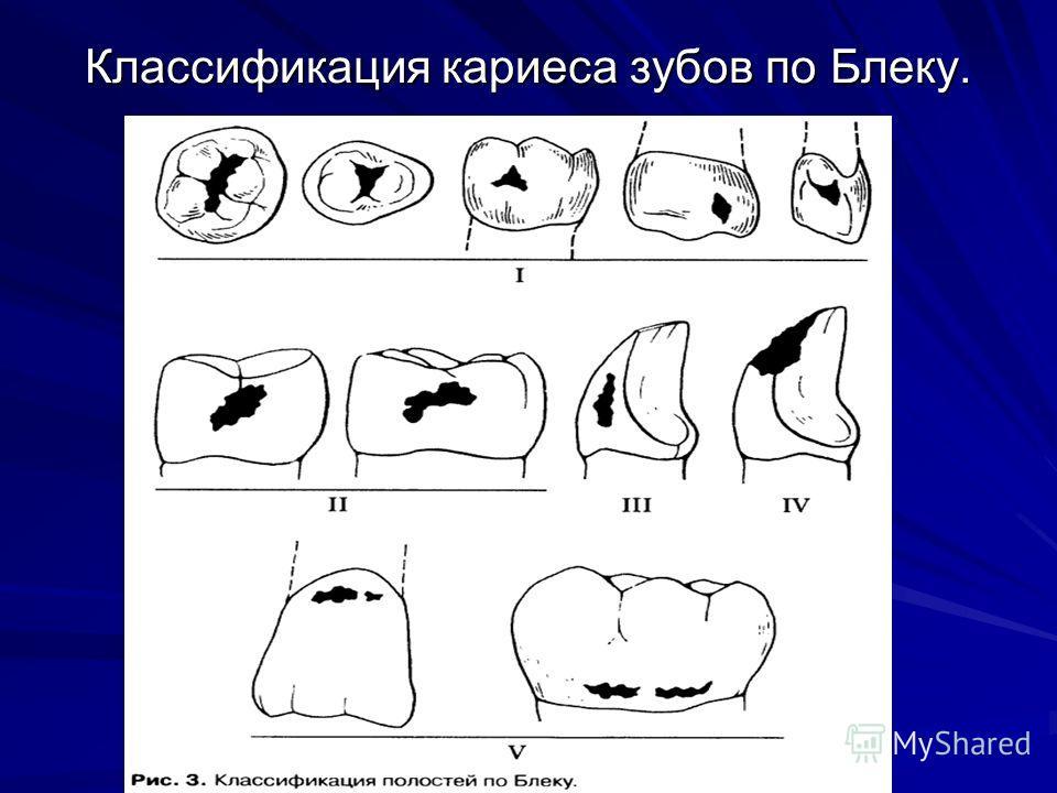 Классификация кариеса зубов по Блеку.