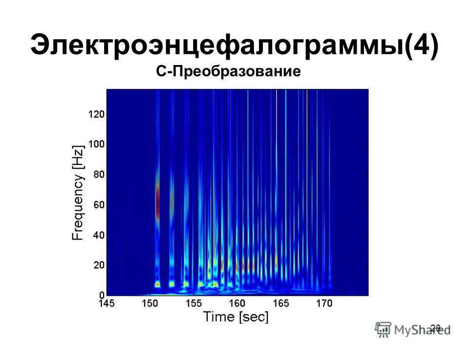 28 Электроэнцефалограммы(4) С-Преобразование