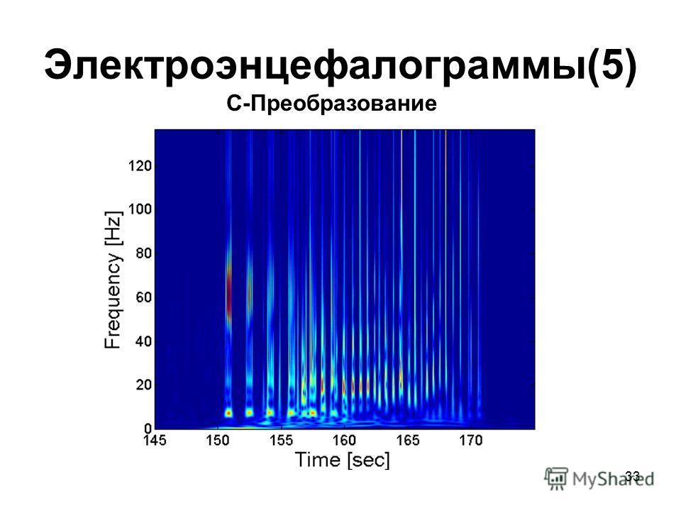 33 Электроэнцефалограммы(5) С-Преобразование