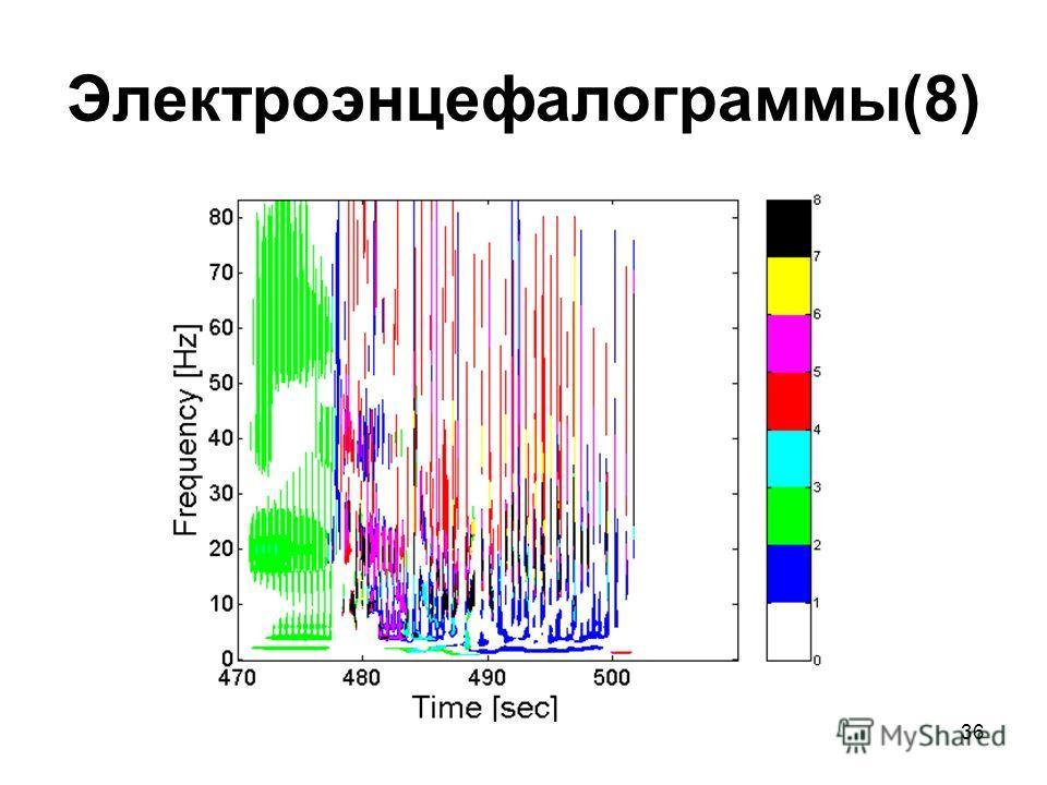 36 Электроэнцефалограммы(8)