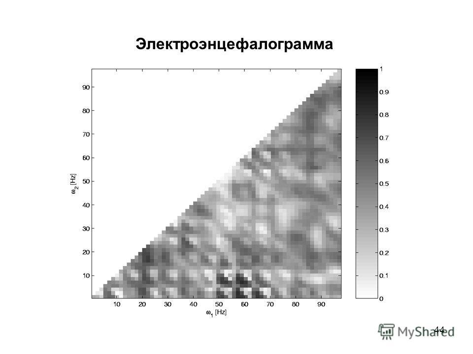 44 Электроэнцефалограмма