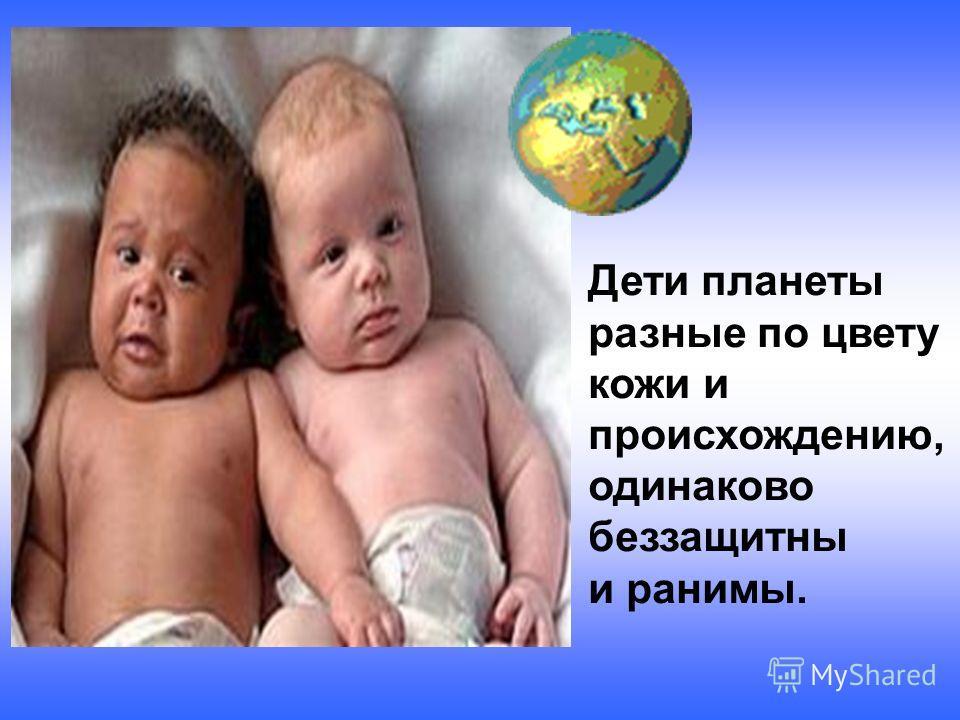 Дети планеты разные по цвету кожи и происхождению, одинаково беззащитны и ранимы.