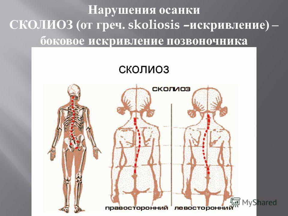 Нарушения осанки СКОЛИОЗ ( от греч. skoliosis – искривление ) – боковое искривление позвоночника
