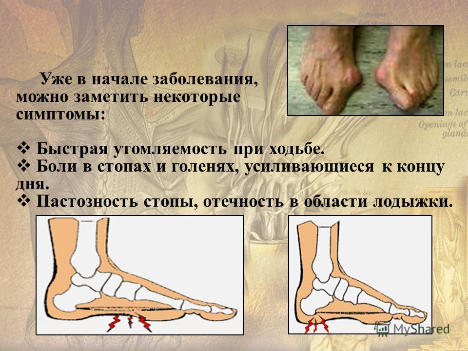 Уже в начале заболевания, можно заметить некоторые симптомы: Быстрая утомляемость при ходьбе. Боли в стопах и голенях, усиливающиеся к концу дня. Пастозность стопы, отечность в области лодыжки.