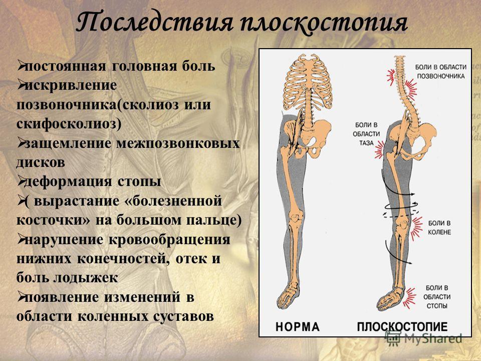 постоянная головная боль искривление позвоночника(сколиоз или скифосколиоз) защемление межпозвонковых дисков деформация стопы ( вырастание «болезненной косточки» на большом пальце) нарушение кровообращения нижних конечностей, отек и боль лодыжек появ
