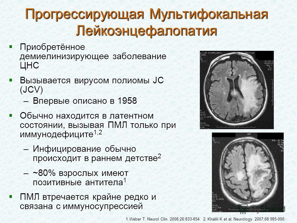 Приобретённое демиелинизирующее заболевание ЦНС Приобретённое демиелинизирующее заболевание ЦНС Вызывается вирусом полиомы JC (JCV) Вызывается вирусом полиомы JC (JCV) –Впервые описано в 1958 Обычно находится в латентном состоянии, вызывая ПМЛ только