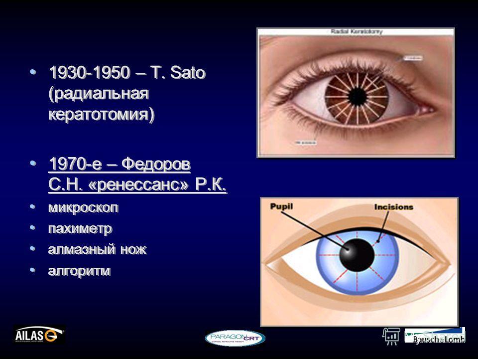 1930-1950 – Т. Sato (радиальная кератотомия) 1970-е – Федоров С.Н. «ренессанс» Р.К. микроскоп пахиметр алмазный нож алгоритм 1930-1950 – Т. Sato (радиальная кератотомия) 1970-е – Федоров С.Н. «ренессанс» Р.К. микроскоп пахиметр алмазный нож алгоритм