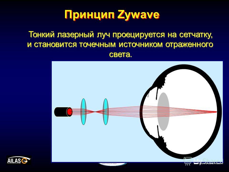 Тонкий лазерный луч проецируется на сетчатку, и становится точечным источником отраженного света. Тонкий лазерный луч проецируется на сетчатку, и становится точечным источником отраженного света. Принцип Zywave