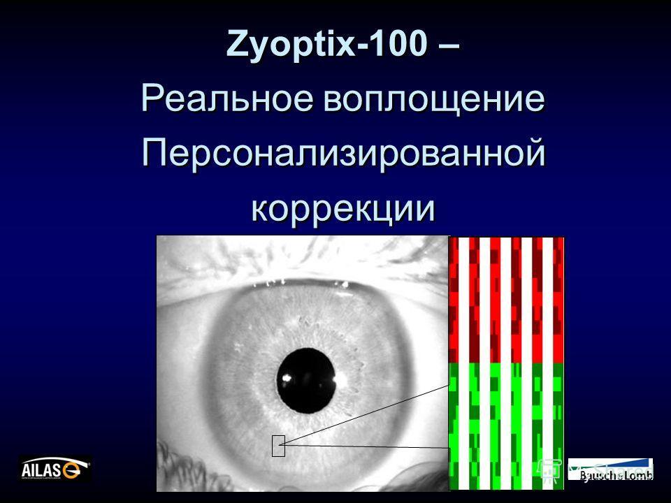 Zyoptix-100 – Реальное воплощение Персонализированной коррекции