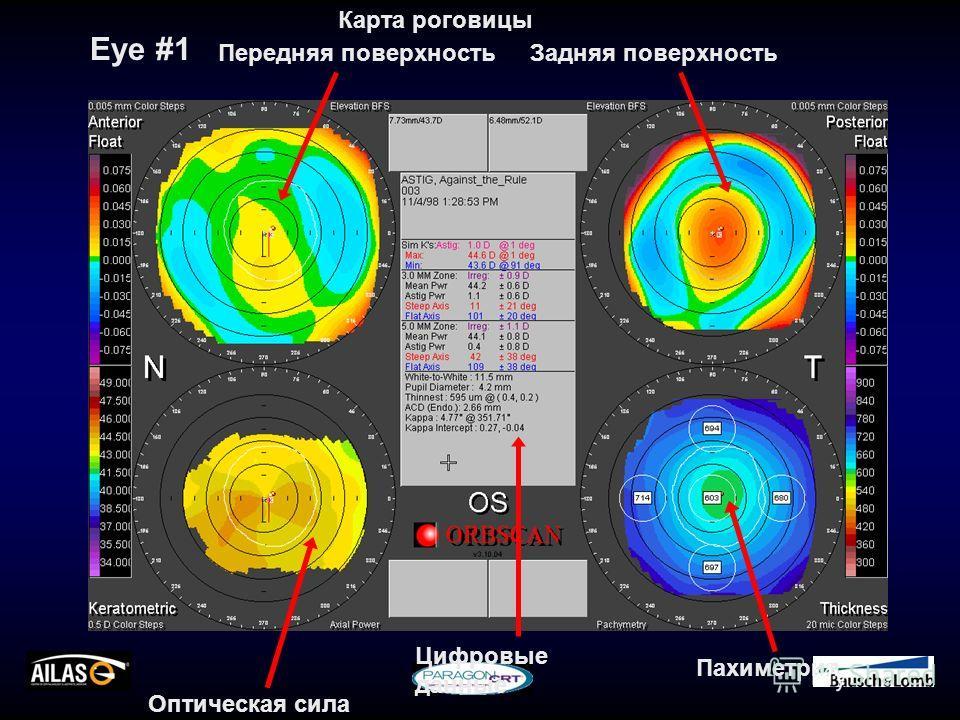 Eye #1 Карта роговицы Передняя поверхностьЗадняя поверхность Оптическая сила Пахиметрия Цифровые данные