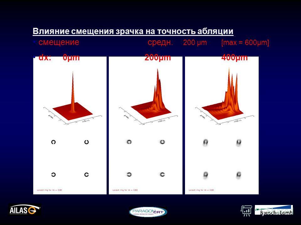 Влияние смещения зрачка на точность абляции смещениесредн. 200 µm[max = 600µm] dx: 0µm200µm400µm