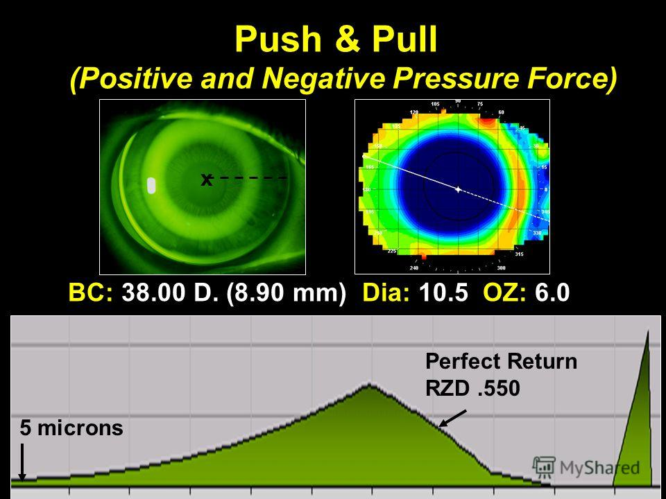 BC: 38.00 D. (8.90 mm) Dia: 10.5 OZ: 6.0 Push & Pull (Positive and Negative Pressure Force) 5 microns Perfect Return RZD.550 x