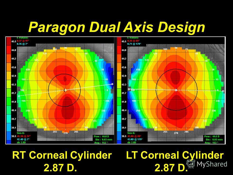 Paragon Dual Axis Design RT Corneal Cylinder LT Corneal Cylinder 2.87 D. 2.87 D.