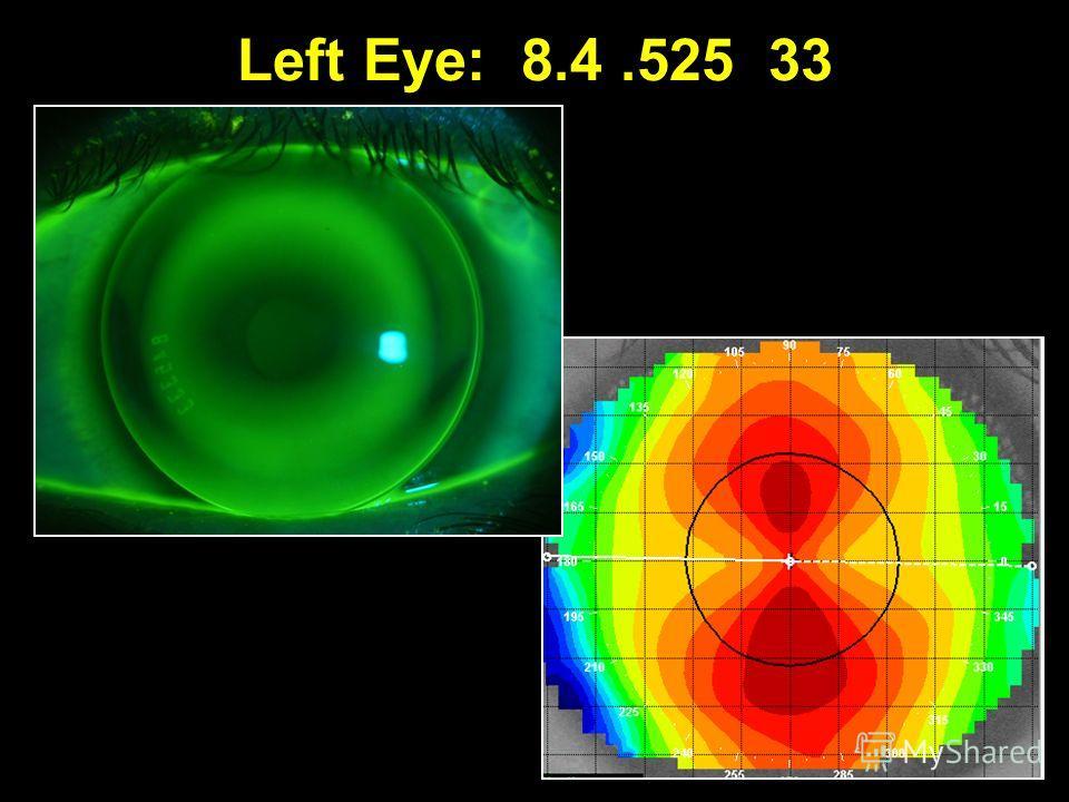 Left Eye: 8.4.525 33
