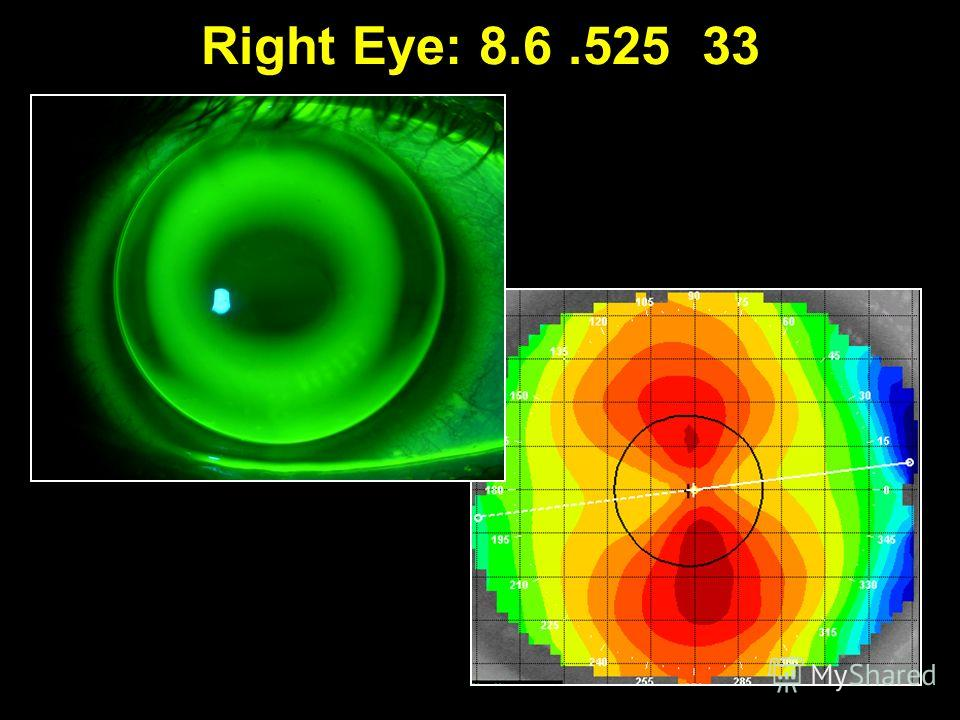 Right Eye: 8.6.525 33