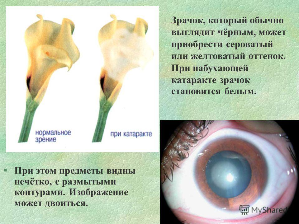 §При этом предметы видны нечётко, с размытыми контурами. Изображение может двоиться. Зрачок, который обычно выглядит чёрным, может приобрести сероватый или желтоватый оттенок. При набухающей катаракте зрачок становится белым.