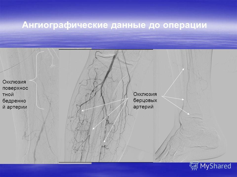 Ангиографические данные до операции Окклюзия поверхнос тной бедренно й артерии Окклюзия берцовых артерий