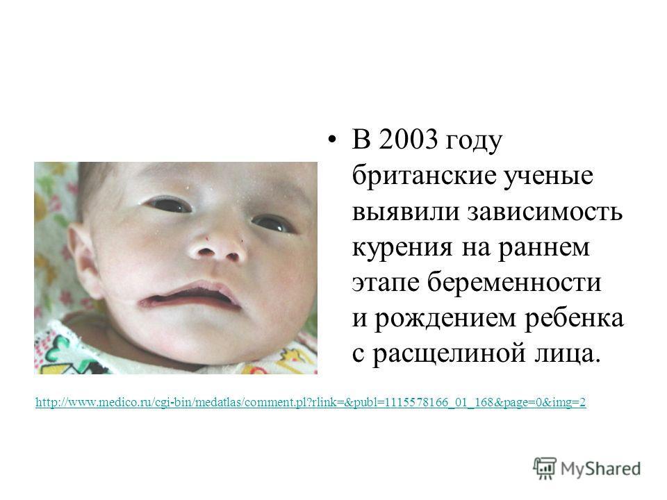 В 2003 году британские ученые выявили зависимость курения на раннем этапе беременности и рождением ребенка с расщелиной лица. http://www.medico.ru/cgi-bin/medatlas/comment.pl?rlink=&publ=1115578166_01_168&page=0&img=2