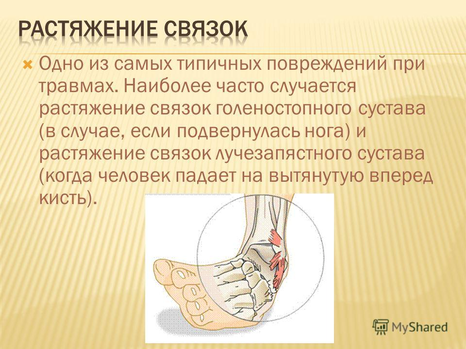 Одно из самых типичных повреждений при травмах. Наиболее часто случается растяжение связок голеностопного сустава (в случае, если подвернулась нога) и растяжение связок лучезапястного сустава (когда человек падает на вытянутую вперед кисть).