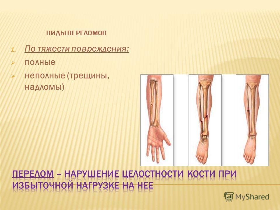 ВИДЫ ПЕРЕЛОМОВ 1. По тяжести повреждения: полные неполные (трещины, надломы)