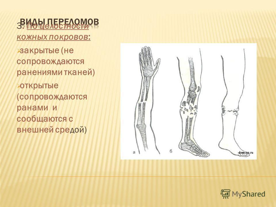 3. По целостности кожных покровов: закрытые (не сопровождаются ранениями тканей) открытые (сопровождаются ранами и сообщаются с внешней средой)