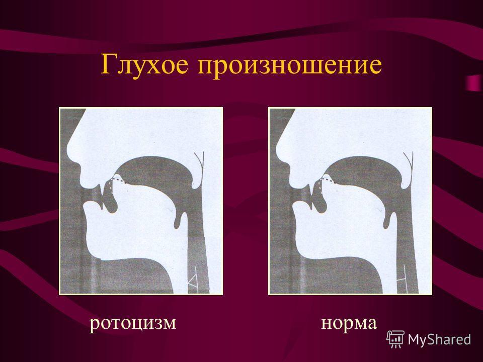 Глухое произношение ротоцизм норма