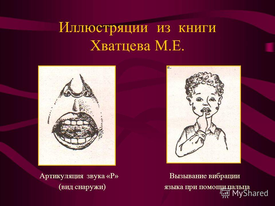 Иллюстряции из книги Хватцева М.Е. Артикуляция звука «Р» Вызывание вибрации (вид снаружи) языка при помощи пальца