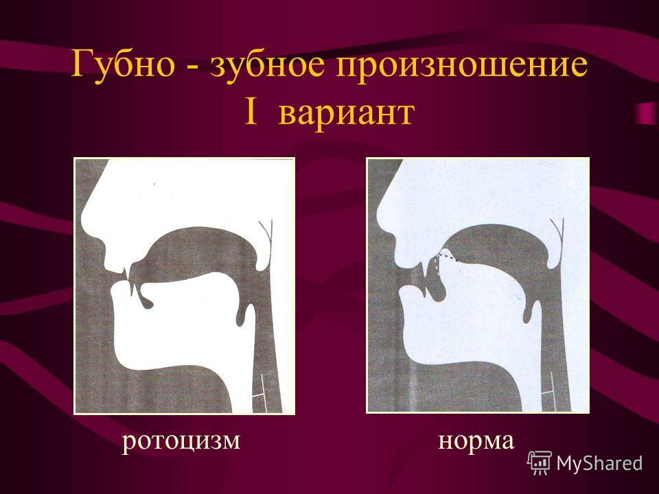 Губно - зубное произношение I вариант ротоцизм норма