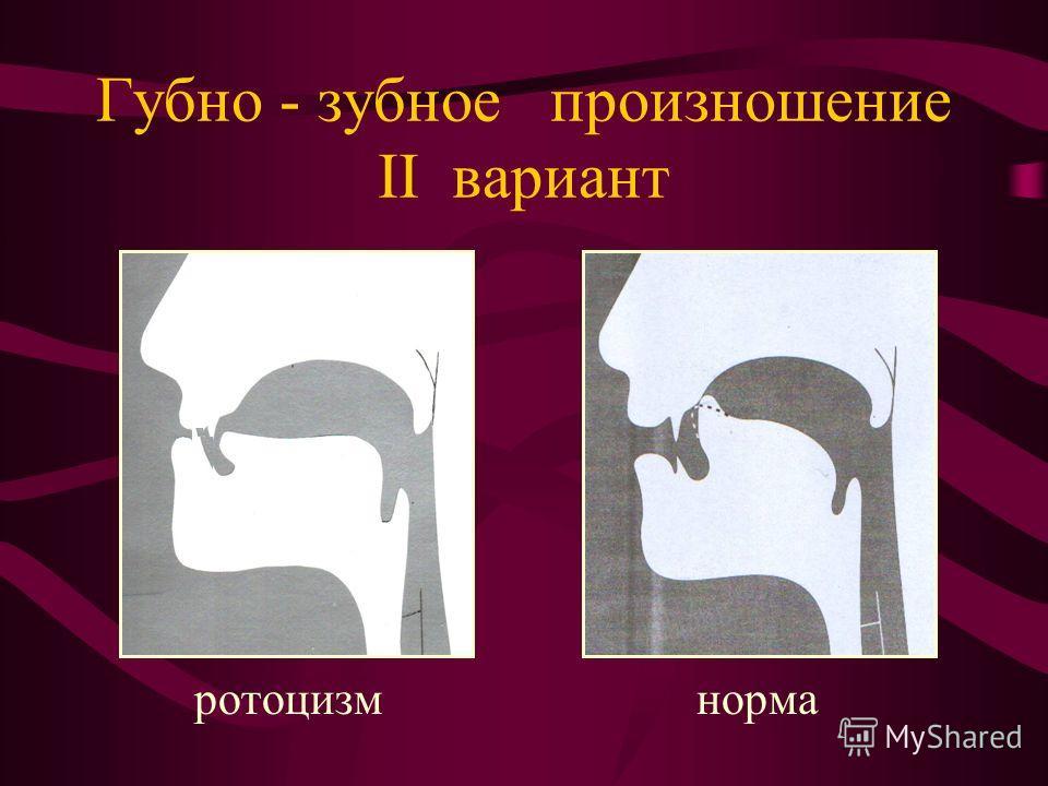 Губно - зубное произношение II вариант ротоцизм норма