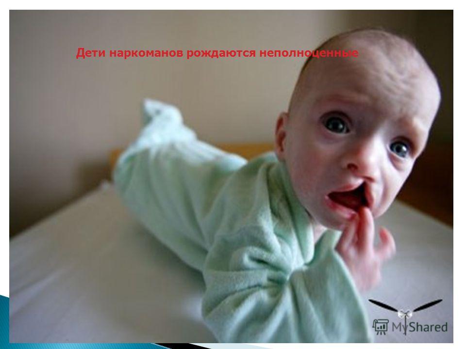 Дети наркоманов рождаются неполноценные