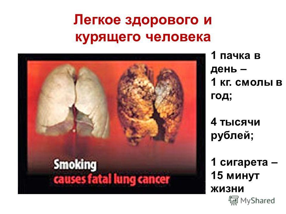 Легкое здорового и курящего человека 1 пачка в день – 1 кг. смолы в год; 4 тысячи рублей; 1 сигарета – 15 минут жизни