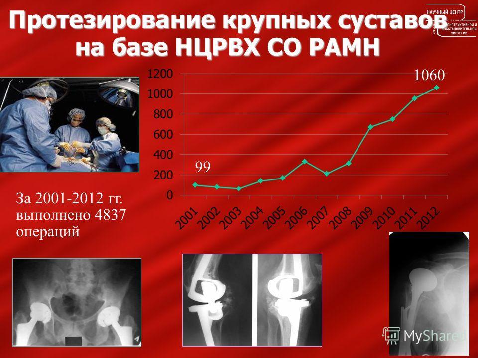 Протезирование крупных суставов на базе НЦРВХ СО РАМН За 2001-2012 гг. выполнено 4837 операций 99 1060