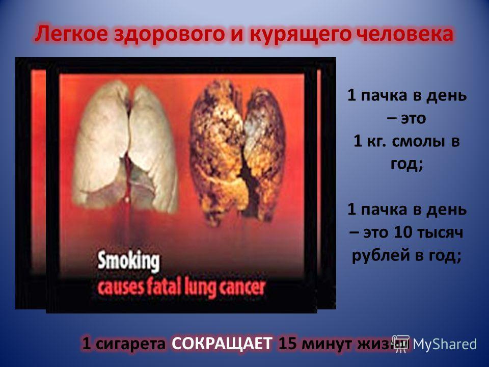 Из каждых 100 человек, умерших от хронических заболеваний лёгких, 75 курили. Из каждых 100 человек, умерших от ишемической болезни сердца, 25 курили. Из каждых 100 человек, умерших от рака, 90 курили. Если человек начал курить в 15 лет, продолжительн