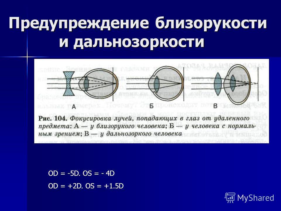 Предупреждение близорукости и дальнозоркости OD = -5D. OS = - 4D OD = +2D. OS = +1.5D