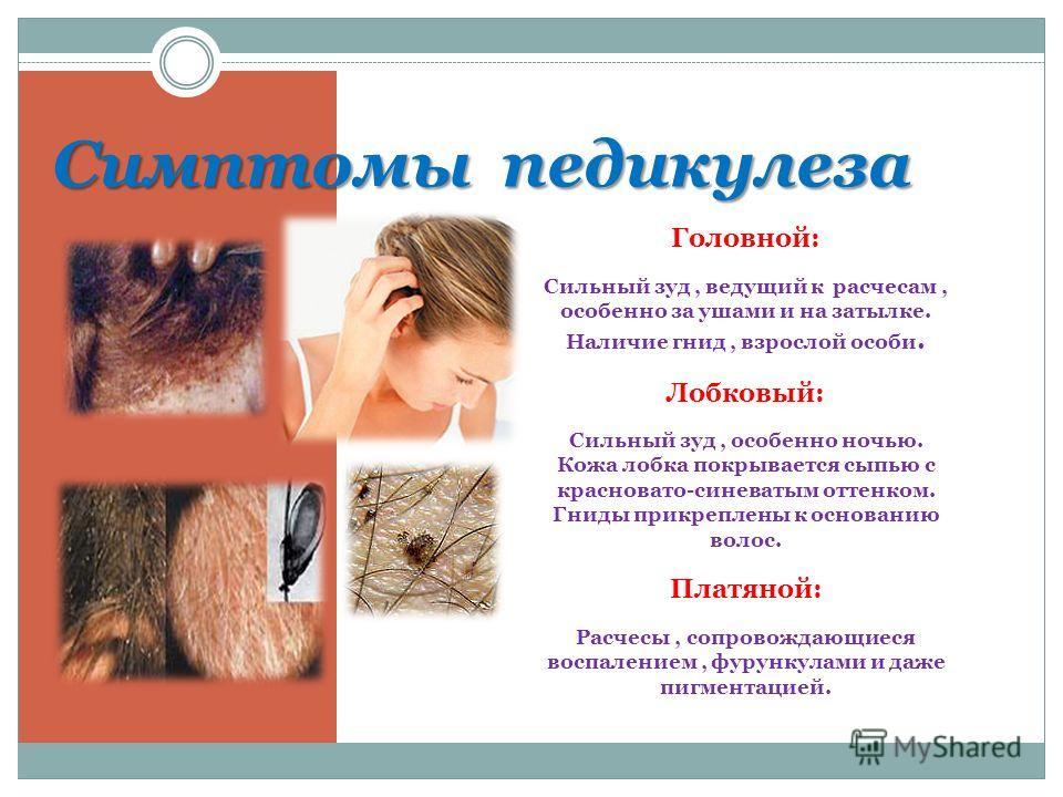 Симптомы педикулеза Головной: Сильный зуд, ведущий к расчесам, особенно за ушами и на затылке. Наличие гнид, взрослой особи. Лобковый: Сильный зуд, особенно ночью. Кожа лобка покрывается сыпью с красновато-синеватым оттенком. Гниды прикреплены к осно