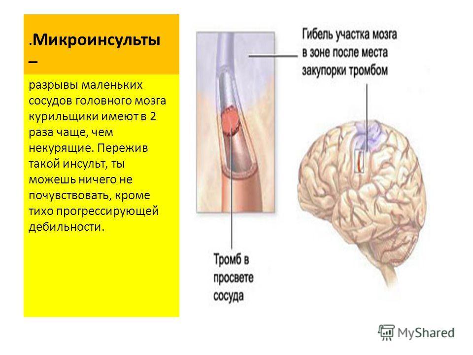 . Микроинсульты – разрывы маленьких сосудов головного мозга курильщики имеют в 2 раза чаще, чем некурящие. Пережив такой инсульт, ты можешь ничего не почувствовать, кроме тихо прогрессирующей дебильности.